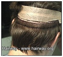 hair loss resistant donor area